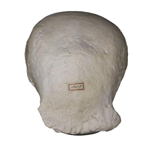 Schedelkapje van de Pithecanthropus erectus (javamens)