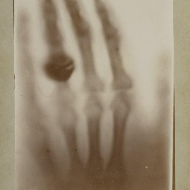 Röntgenfoto door W.C. Röntgen, hand van Röntgens vrouw.