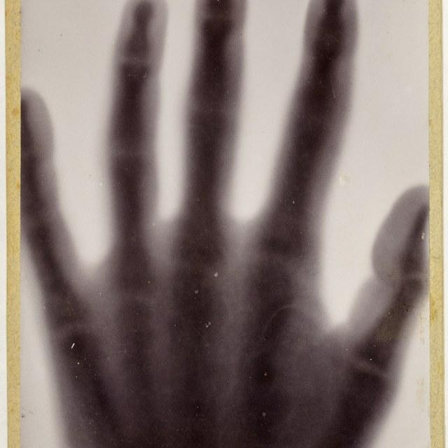Röntgenfoto